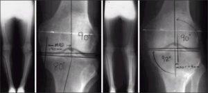 Arthritis X-Rays